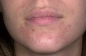 Периоральный дерматит при грудном вскармливании