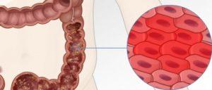 Как лечить катаральный колит, от него ли ли субфебрилитеет