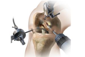 Боли после артроскопии коленного сустава
