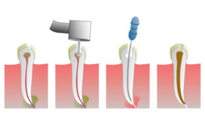 Больно ли перепломбировать зуб, если зуб с нервом?