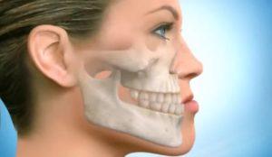 Хруст в челюсти после удара