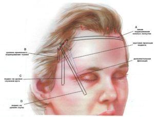 Болит голова за ухом и над бровями у ребенка