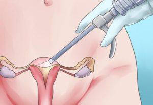 Кровотечение после лапароскопии