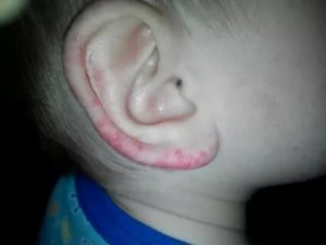Красное пятно на ухе