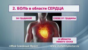 Боль в области сердца слева