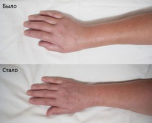 Боль в руке после перелома