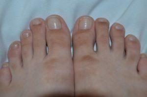 Красные пятна на пальцах ног