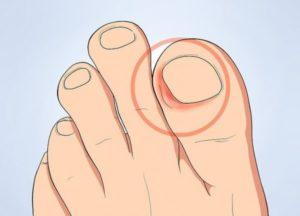 Болит палец на ноге, у основания ногтя