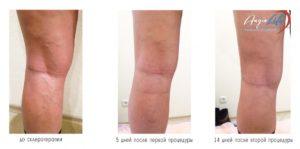 Массаж после склеротеропии