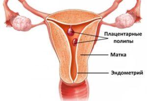 Лечение плацентарного полипа после выкидыша