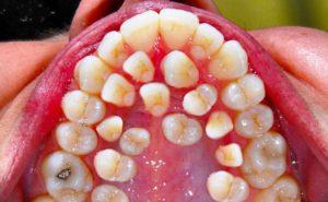 Болят зубы крайние верхние. Есть ли патология?