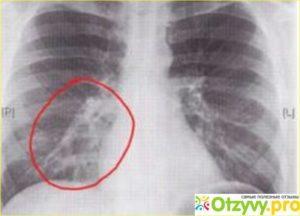 Бронхит или пневмония, расшифровка по рентгену легких