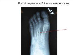 Перелом основания 2 плюсневой кости