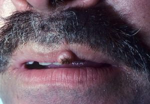 Красно - синяя шишка на половой губе