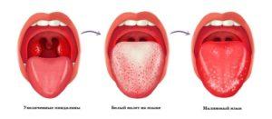 Болит горло и обложен язык