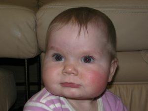 Малышу 7,5 месяцев покраснели щёчки