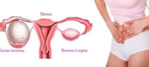 Боль в яичниках на 9 день цикла