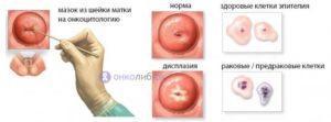 Мазок на онкоцитологию. Эрозия шейки матки