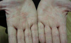 Иерсиниоз - хронический или перенесенный?