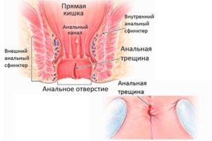 Боль в анальном отверстии