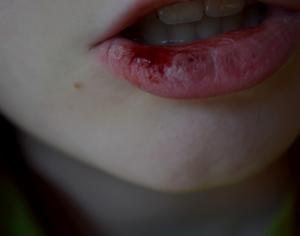 Кровавые вкрапления под нижней губой