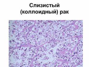 Коллоидный рак