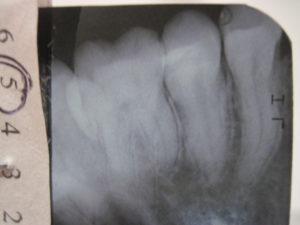 Боль при жевании, зуб 5-ка
