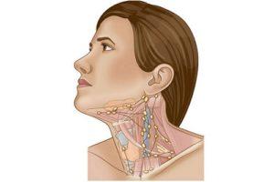 Боль в трахее увеличение лимфоузлов