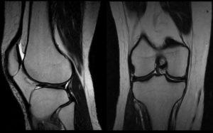 Боль в колене мрт и рентген