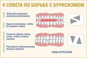 Бруксизм, мышечный тонус нижней челюсти