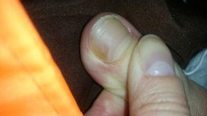 Коричневое пятно на большом пальце ноги