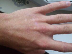 Красные волдыри на руках