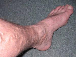 Болит нога от бедра до щиколотки