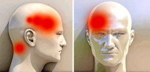 Больно задевать левую часть головы