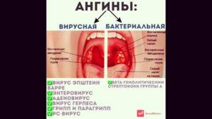 Красное горло после ОРВИ