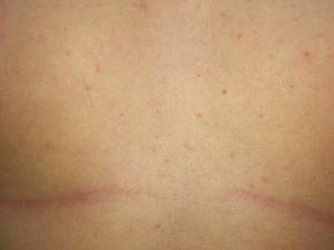 Красная сыпь на груди, без зуда
