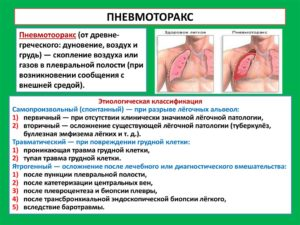 Боли после пневмоторакса