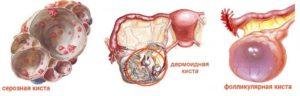 Болит грудь и в области правого яичника