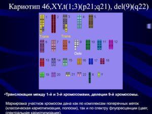 Кариотип 46ХХ 21 p stkt+