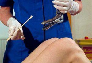 Мазок перед операцией