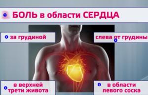 Боль слева в области сердца, ближе к середине