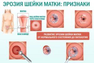 Инфекция после лечения эрозии