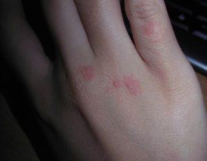 Красные пятна с царапинами на руке