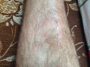 Красные пятна на голени ног, что это и как лечить?