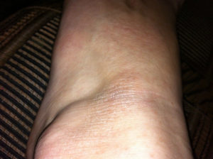 Красное и сухое пятно на ноге