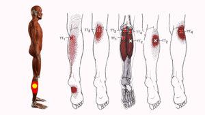 Боль в ноге, от ягодицы до колена