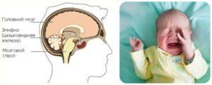 Кисты головного мозга у ребенка 4 года