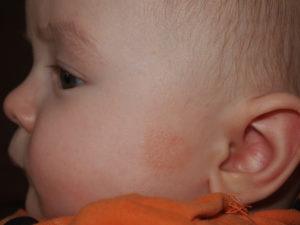 Красное шершавое пЯтно около уха, сыпь на щечках