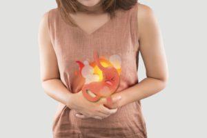 Изжога, дисбактериоз