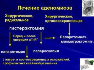 Лечение аденомиоза